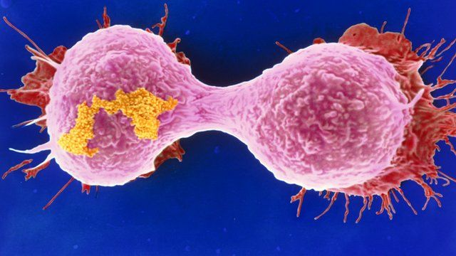 A dividing breast cancer cell
