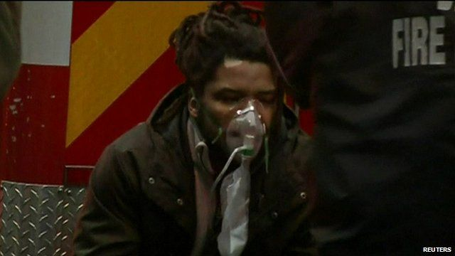 Man with oxygen mask on his face being treated after subway fire