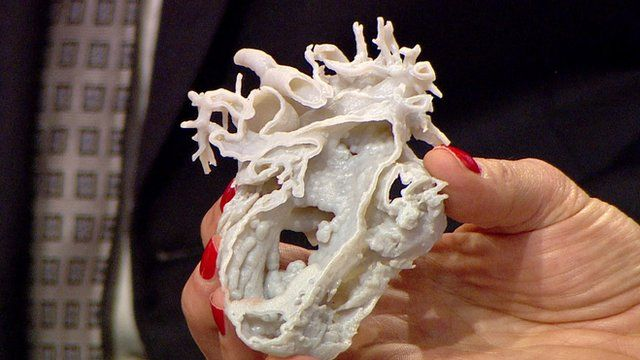 3D printed heart helps to save girl's life