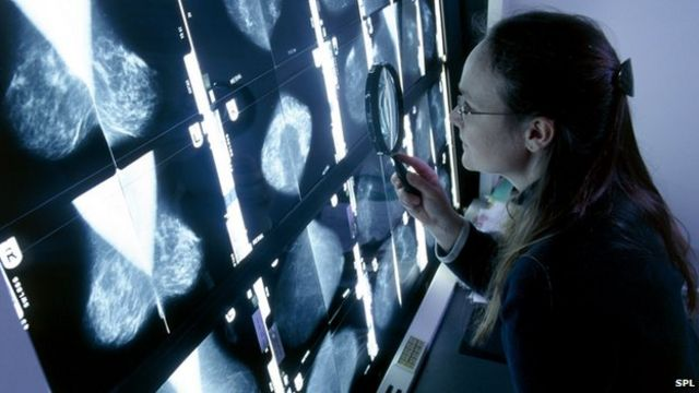 'Half of UK people' will get cancer