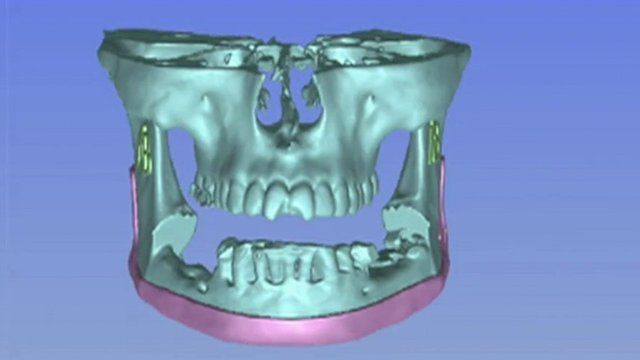 Computer image of jaw