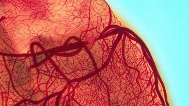 Regular coffee drinkers have 'cleaner' arteries