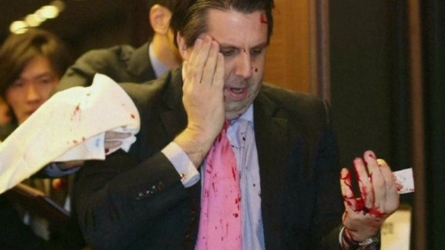Mark Lippert bloodied from the attack