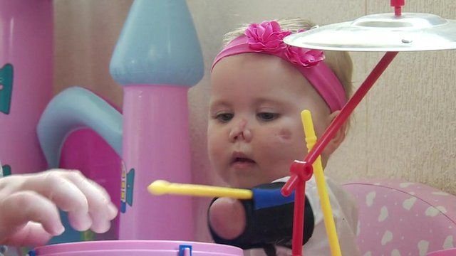 Harmonie-Rose, who lost part of her limbs and face after contracting Meningitis B, playing with a drum kit