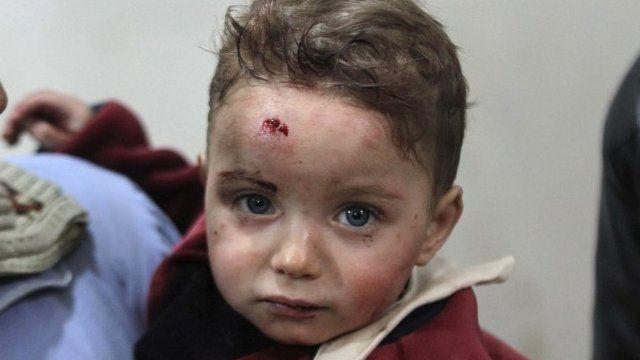 Injured child in Damascus - 25/01/2015