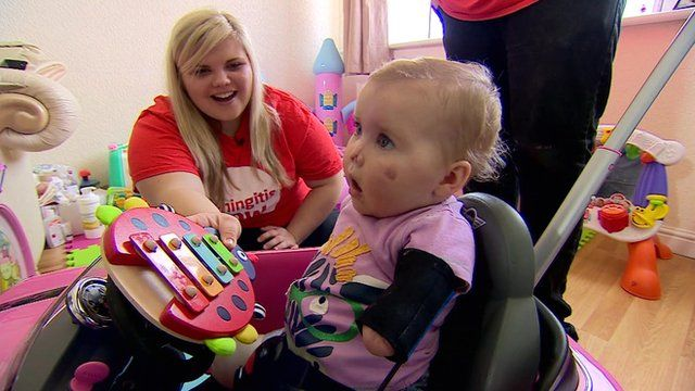 Harmonie-Rose, who lost part of her limbs and face after contracting meningitis B