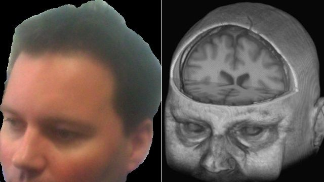 Owain Clarke and the image of his brain