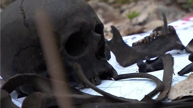 The skull and jawbone of a Russian soldier