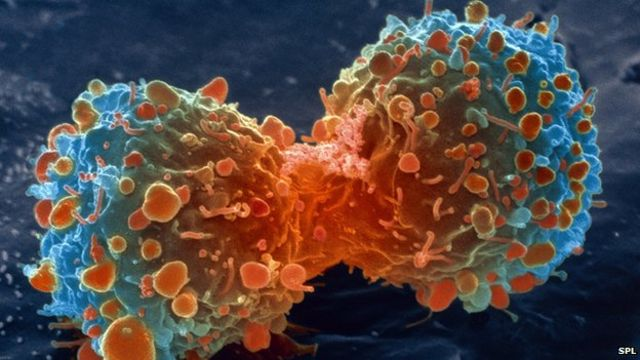 Female lung cancer cases top 20,000