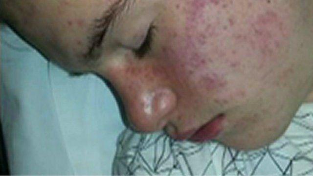 Owain Vaughan in hospital