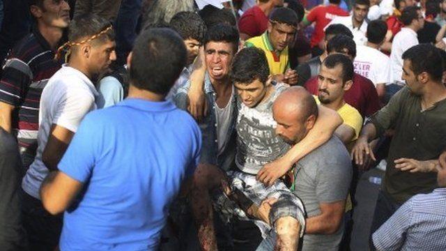 Injured man carried at Turkey rally