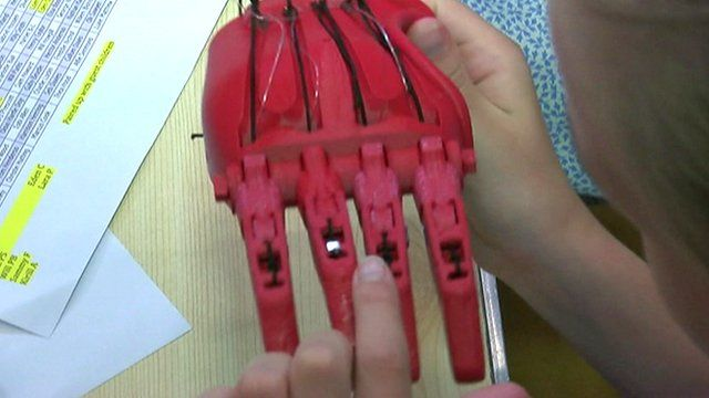 Prosthetic hand being assembled
