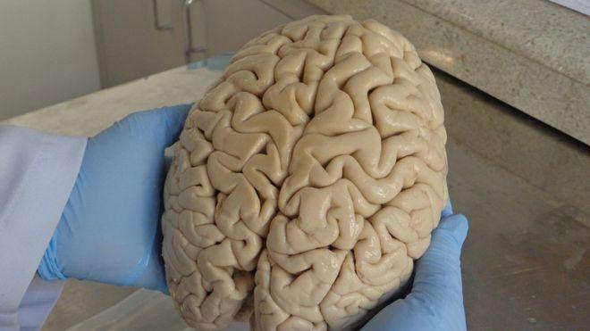 Cérebro doado ao Biobanco