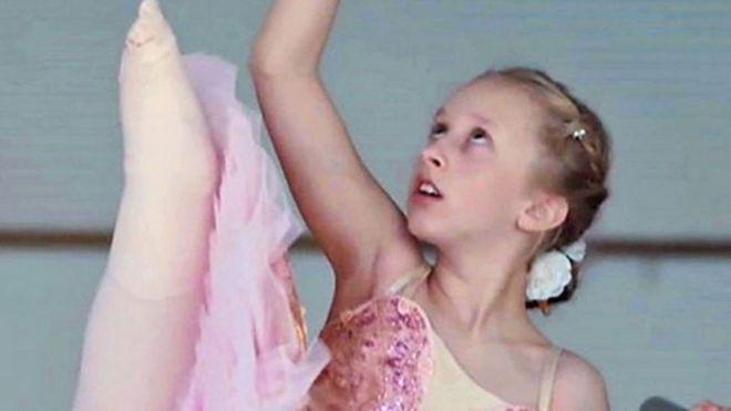 La historia de una niña que perdió una pierna a los 2 años y cumplió su sueño de ser bailarina