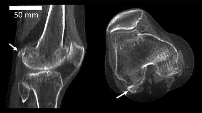 Dolor al centro de la rodilla