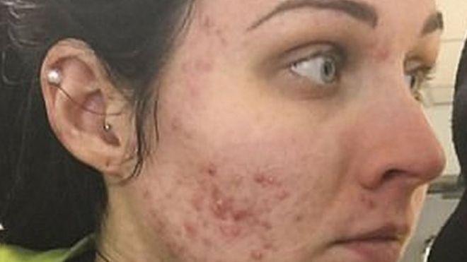 Tratamiento para quitar manchas por acne