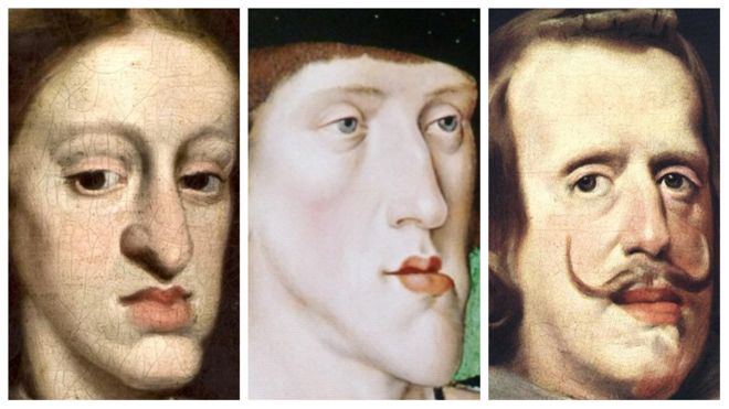 """""""Габсбургская челюсть"""" - результат инцеста. Как выродилась могущественная династия Европы"""