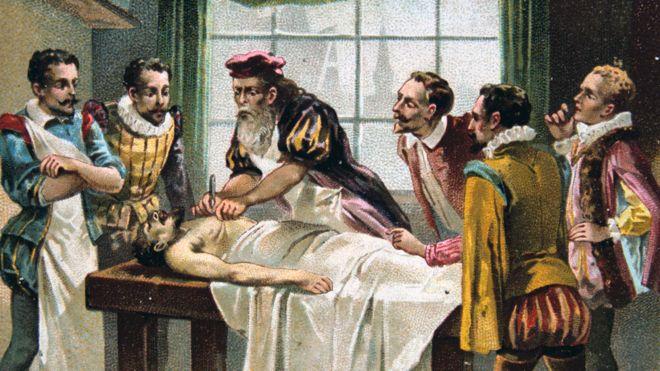 Una imagen del cirujano militar francés del siglo XVI Ambroise Pare, en acción.