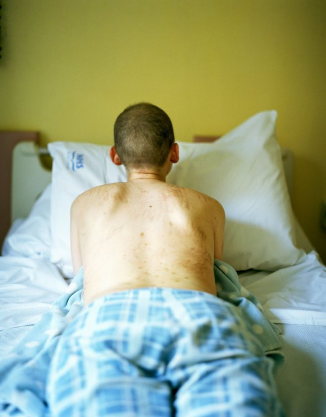 Carly Clarke lies on a hospital bed, displaying blemishes on her back resulting from treatment