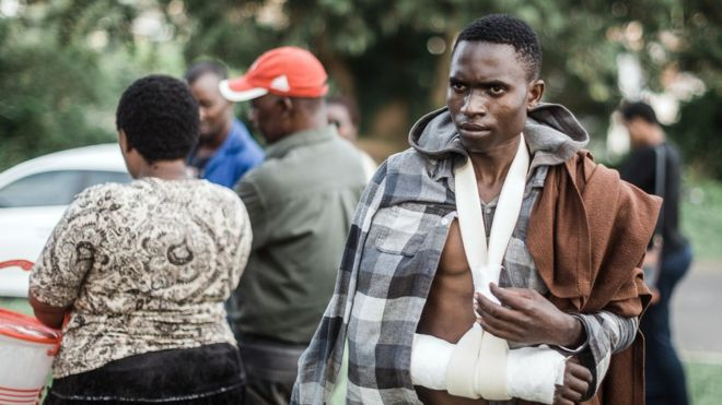 A man from Malawi injured after an attack on foreign workers