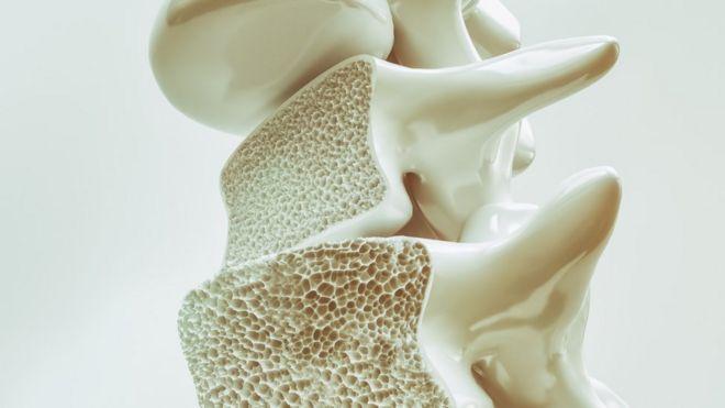 Imagem representando uma parte do osso danificada pela osteoporose