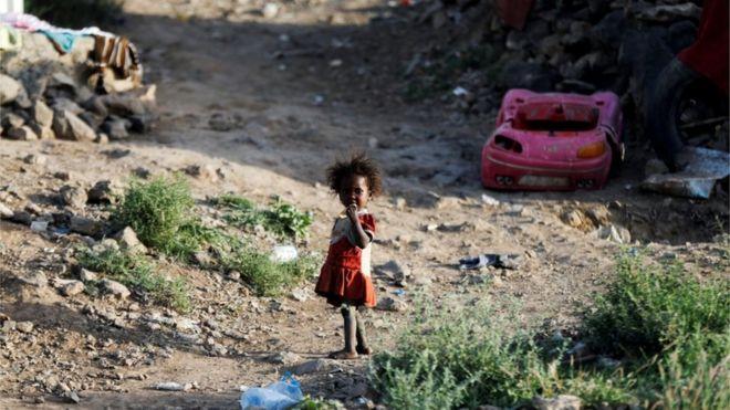 طفلة نازحة شردتها الحرب في اليمن