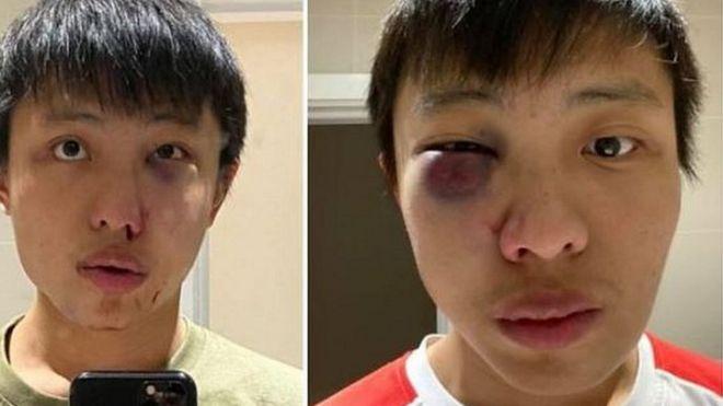 Saya tidak ingin virus coronamu di negaraku Mahasiswa Singapura alami srangan rasisme