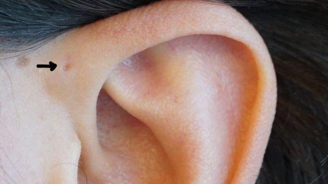 De la oreja inflamacion izquierda detras