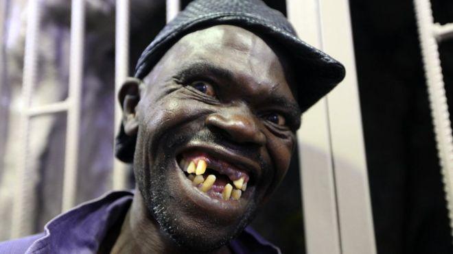 Ugly Woman No Teeth