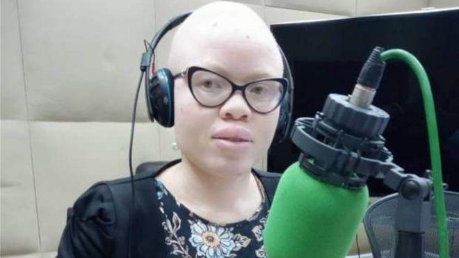 Je me sens davantage en sécurité, en tant qu'albinos