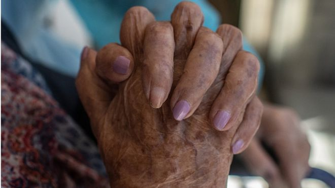 A nail without nail polish to allow oxygen measures is seen on Concepció Zendrera hands in Spain in May