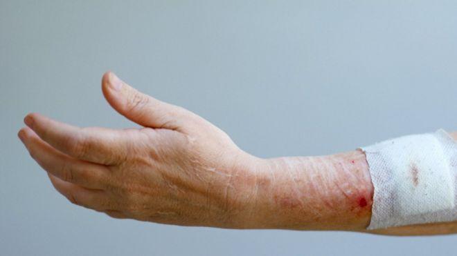 زخم روز زودتر از زخم شب بهبود مییابد