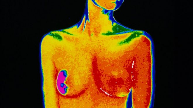 A scan of a woman with breast cancer