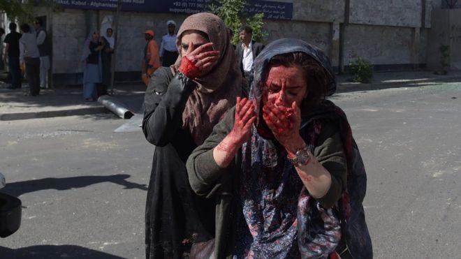Mujeres con las manos ensangrentadas tras la explosión en el distrito diplomático de Kabul, Afganistán, el 31 de mayo.