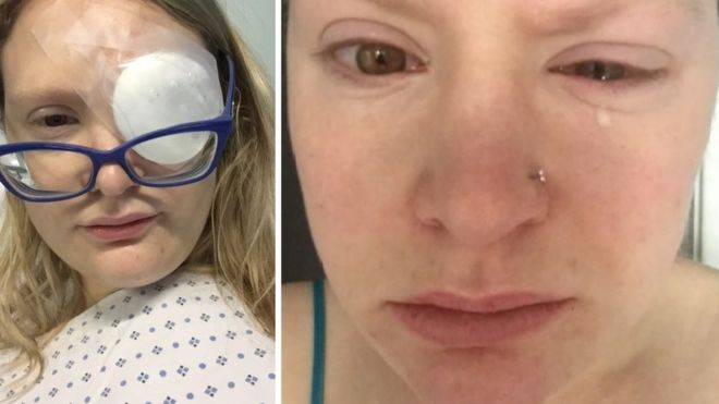 bffdde228e8a Image caption Natalie Rance lost the majority of the sight in her left eye  after contracting the infection