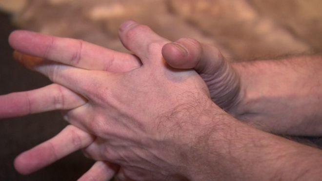 Руки жертвы