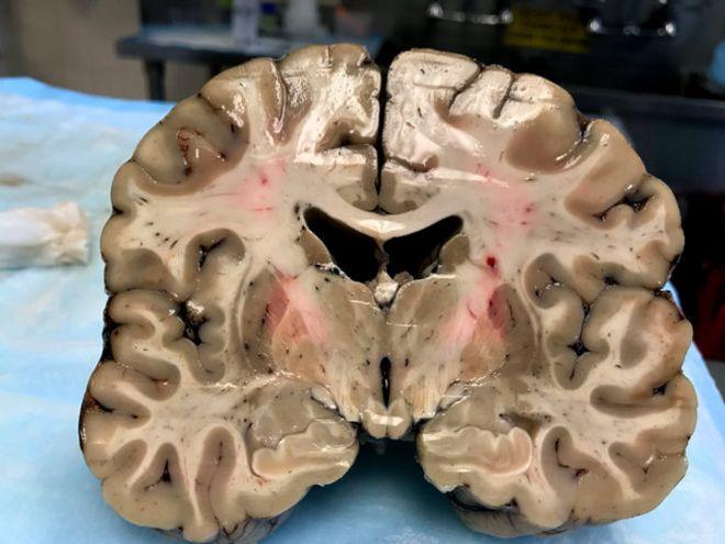 O surpreendente resultado da autópsia em cérebro de atleta que matou ... ab12cd38769