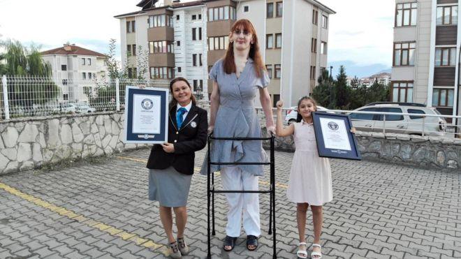 Rumeysa Gelgi est reconnue comme la femme vivante la plus grande du monde
