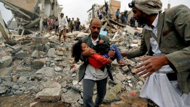 Αποτέλεσμα εικόνας για yemen war