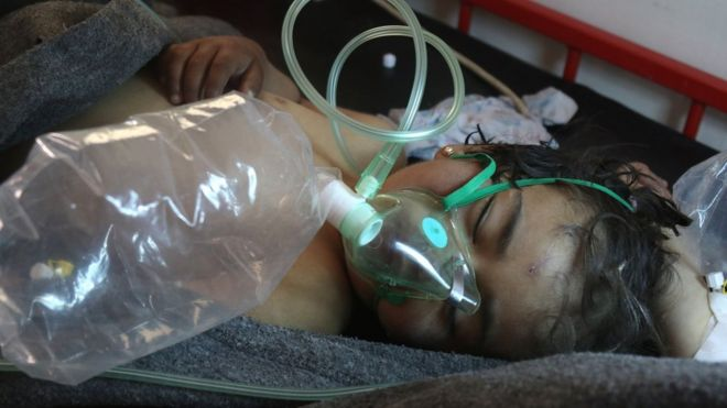 Syrian child receives treatment following a suspected gas attack in Khan Sheikhoun, on April 4, 2017