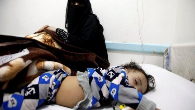 """الحرب في اليمن: علماء يكشفون """"مصدر وباء الكوليرا الأسوأ في التاريخ"""""""