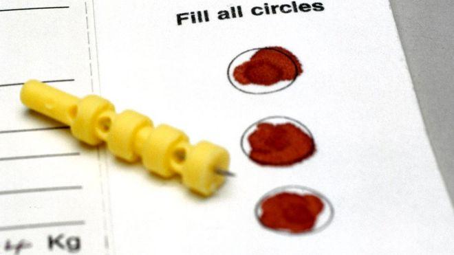 Собираемые на протяжении долгих лет образцы крови новорожденных сохранялись без разрешения родственников детей - и это большая этическая проблема и головная боль для современных исследователей