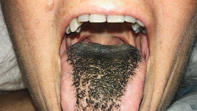 Sintomas de los hongos en la boca