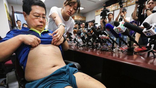 林子健在記者會上展示傷勢
