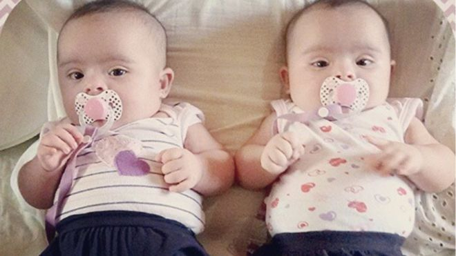 Helena e Heloísa quando eram bebês