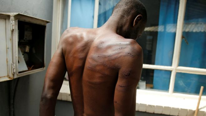 An arrested injured man is seen at a hospital following protests in Harare, Zimbabwe, 16 January 2019
