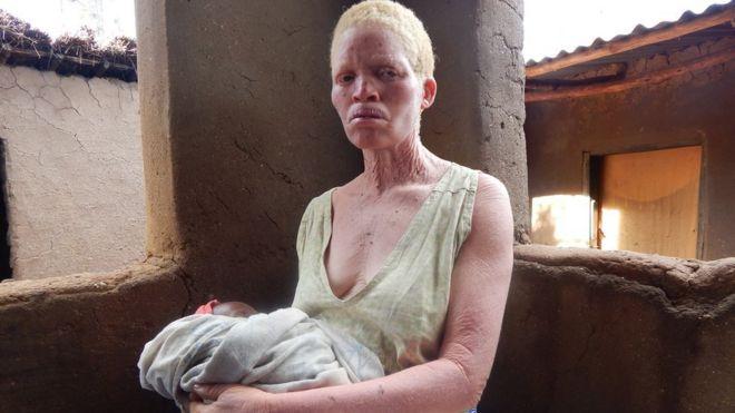 [Imagem: _94791159_albinosurvivor.jpg]
