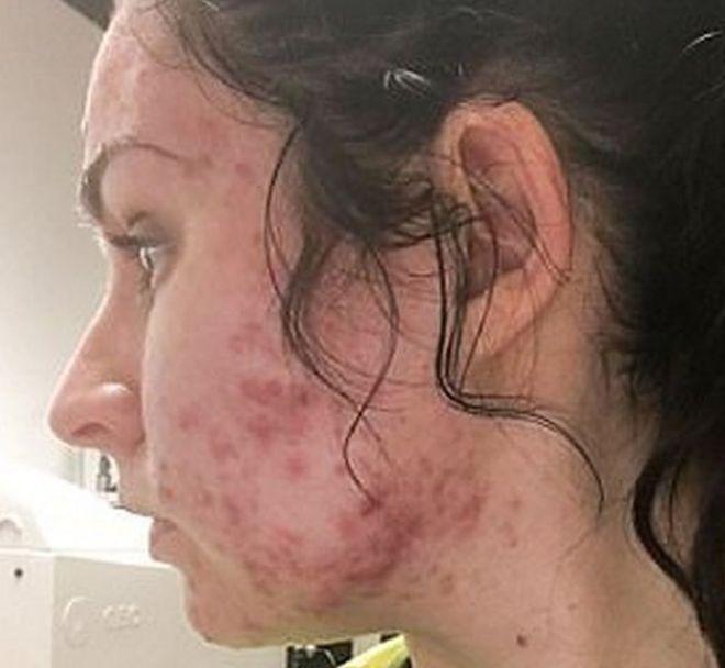 Granos por debajo de la piel en la cara