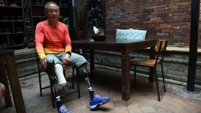 夏伯渝在1975年攀登珠峰時雙腿被凍傷。