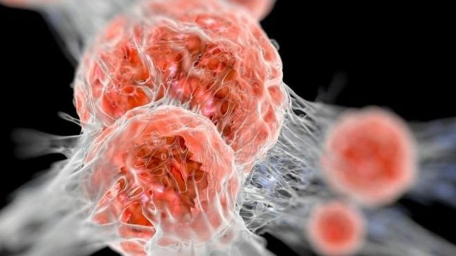 用免疫療法攻克癌症相對比較新